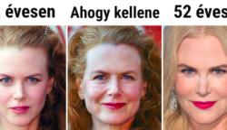 Egy plasztikai sebész megmutatta, hogyan nézne ki 10 híres nő, ha hétköznapi emberekként öregednének