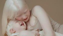 Albínó testvérek, akik 12 év különbséggel születtek, a fotóikkal izgalomba hozták az internetet