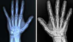 20 kép, amit eddig csak a radiológusok láttak. És most te is megteheted