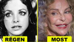 Ez a 6 hajdan gyönyörű hölgy, teljesen eldeformálta magát a sok plasztikai műtét miatt.
