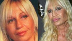 Donatella Versace evolúciója: Így alakította át magát a divat királynője