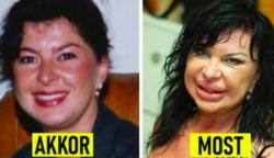 18 híresség, aki túlzásba esett a plasztikával