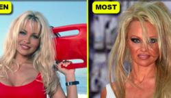 9 híresség, aki durva változáson ment át a plasztikai műtétek miatt!