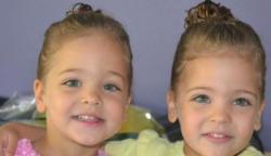 7 éves korukban a világ legszebb ikreinek tartották őket! Így néznek ki most (képek a cikkben)