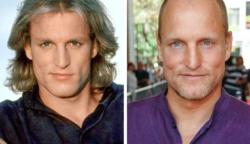 Így nézett ki ez a 12 híres színész mielőtt kopasz lett